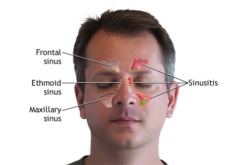 sinus-blog